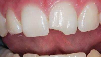 broken-teeth-repair