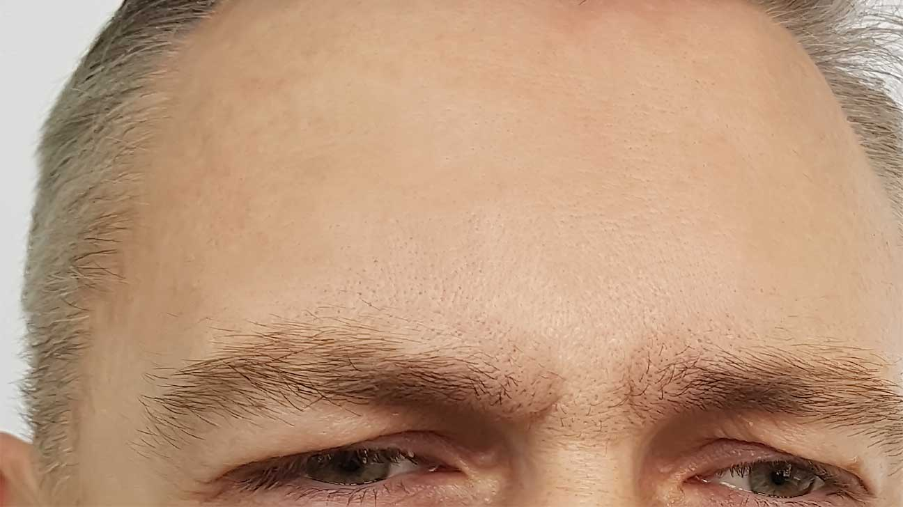 forehead man wrinkles before and after